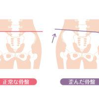 【骨盤の歪み】腰痛リスクも上がる骨盤の歪み方には特徴があるので骨盤矯正だけでは意味がない