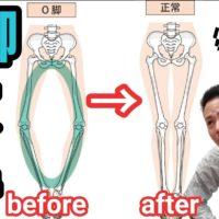 【O脚改善】O脚改善ストレッチ&トレーニングでO脚腰痛をスッキリ解消